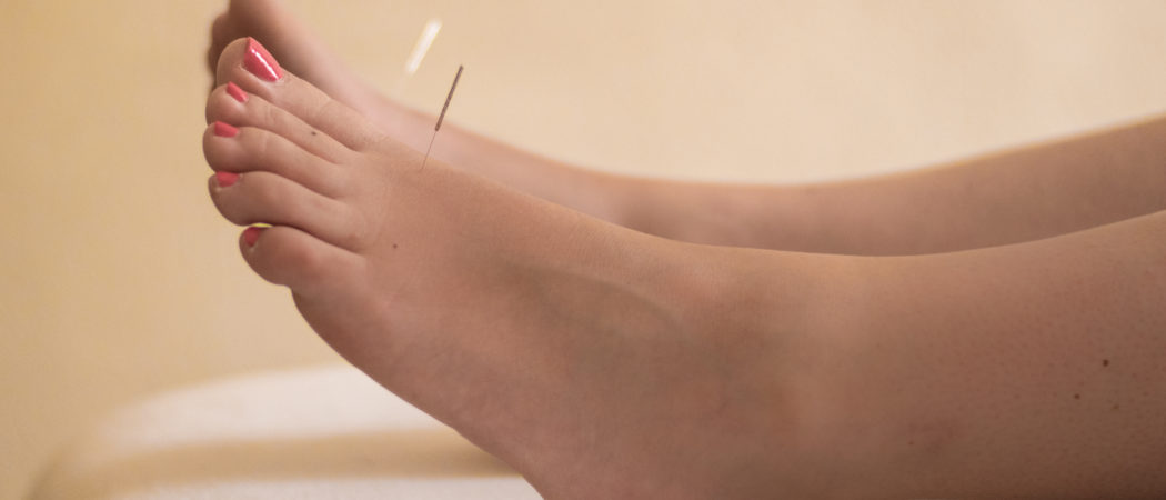 acupuncture needles at Liver 3